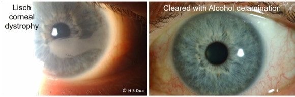 Opthalmologist in Nottingham. Alcohol delamination of corneal epithelium (ALD). 2