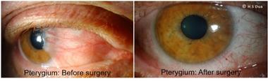 Conjunctiva issues. Excision of pinguecula and pterygium with autologous conjunctival graft. 1