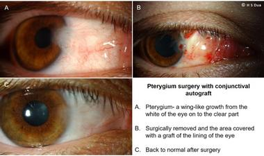 Conjunctiva issues. Excision of pinguecula and pterygium with autologous conjunctival graft. 2