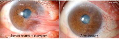 Conjunctiva issues. Excision of pinguecula and pterygium with autologous conjunctival graft. 3